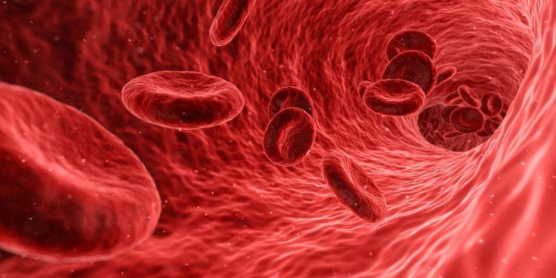 cbd-arteriosclerosis
