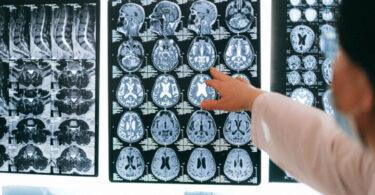 CBD against brain tumors
